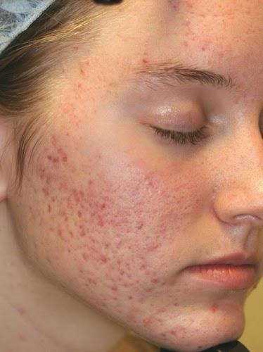 Cồn trong mỹ phẩm gây hại cho da