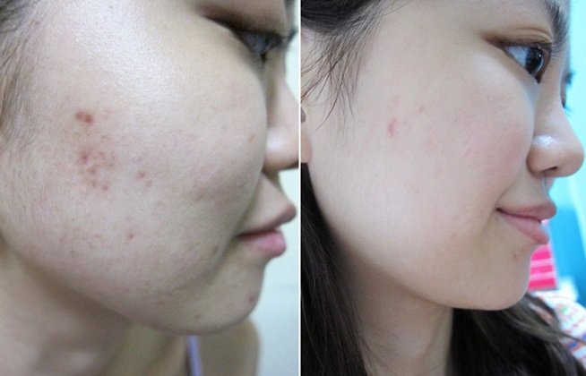 review bộ Trị Nám SKII 28 Ngày- Whitening Spots Specialist Concentrate